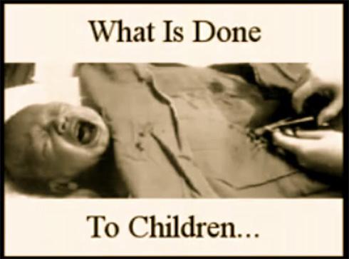 circumcision (1)
